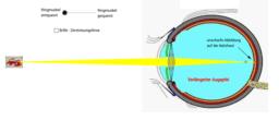 Kurzsichtigkeit des Auges